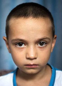 Дима Голвашев, 6 лет, акушерский паралич левого плечевого сплетения, требуется этапное хирургическое лечение. 927675 руб.