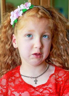 Поля Катенева, 7 лет, детский церебральный паралич, требуется лечение. 199430 руб.
