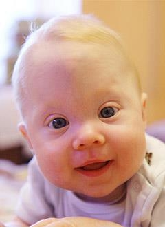 Соня Варенова, 9 месяцев, деформация черепа, спасет операция, требуется компьютерное планирование операции и расходные материалы. 690000 руб.