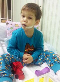 Женя Чередников, 5 лет, посттравматическая деформация лица, микрогнатия (недоразвитие челюстей), сужение зубных рядов, требуется ортодонтическое лечение. 220000 руб.