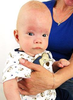 Арсений Максимов, 5 месяцев, деформация черепа, требуется лечение специальными шлемами. 180000 руб.