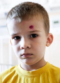 Женя Жабко, 3 года, первичный иммунодефицит, спасет лекарство. 52731 руб.