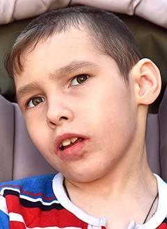 Сережа Брюханов, 10 лет, симптоматическая эпилепсия, спасет установка стимулятора вагуса (блуждающего нерва). 1030454 руб.