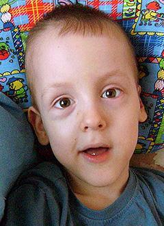 Алеша Антропов, 7 лет, детский церебральный паралич, симптоматическая эпилепсия, требуется лечение. 199430 руб.