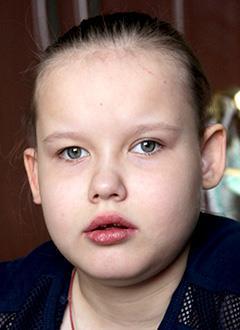 Полина Винокурова, 9 лет, эпилептическая энцефалопатия, задержка психоречевого развития, требуется курсовое лечение. 199200 руб.