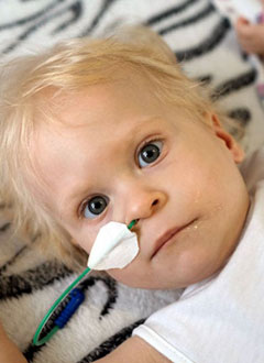 Лера Швачева, 1 год 3 месяца, врожденный прогрессирующий сколиоз 4-й степени на фоне множественных аномалий позвонков и ребер, спасет операция. 1770700 руб.