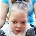 Ксюша Засорина, симптоматическая мультифокальная эпилепсия, детский церебральный паралич, требуется лечение, 141050 руб.
