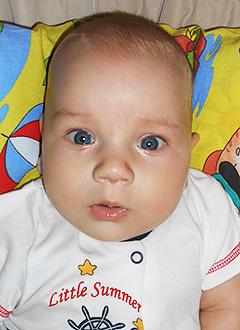 Денис Бибишев, 4 месяца, тотальный акушерский паралич слева, спасут операции. 949375 руб.