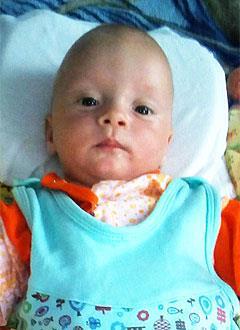 Никита Кинаш, 4 месяца, деформация черепа, требуется лечение специальными шлемами. 180000 руб.
