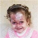 Патимат Гелачова, буллезный эпидермолиз, требуется лечение и перевязочные материалы, 722880 руб.