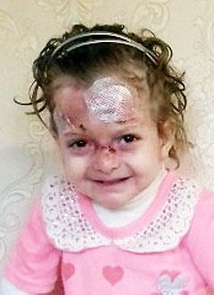 Патимат Гелачова, 6 лет, буллезный эпидермолиз, требуется лечение и перевязочные материалы. 722880 руб.