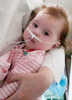 Лиза Смольянинова, 5 месяцев, состояние после операции по коррекции омфалоцеле (врожденный дефект передней брюшной стенки), бронхолегочная дисплазия, дыхательная недостаточность, спасет лекарство. 666913 руб.
