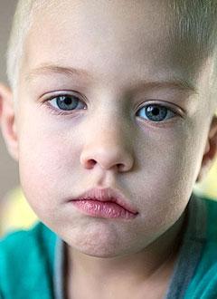 Артемий Верес, 4 года, врожденный полный паралич лицевого нерва слева, спасет серия операций. 748650 руб.