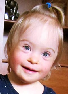 Маша Логинова, полтора года, сложный врожденный порок сердца, спасет операция. 591325 руб.