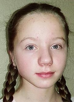 Катя Фаллер, 14 лет, сахарный диабет 1-го типа, требуются расходные материалы к инсулиновой помпе. 205045 руб.