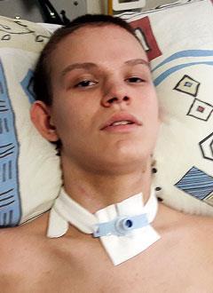 Ваня Шемшура, 15 лет, последствия закрытой позвоночно-спинальной травмы, требуется опора для стояния. 184450 руб.