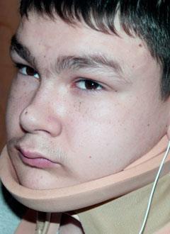 Кузьма Сергиенко, 13 лет, врожденный порок развития позвоночника, сколиоз 3-й степени, спасет операция, требуются расходные материалы. 612504 руб.
