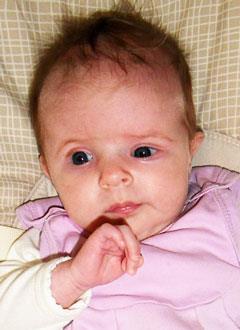 Лиза Козлова, 3 месяца, деформация черепа, требуется подготовка к операции и саморассасывающиеся пластины. 730000 руб.