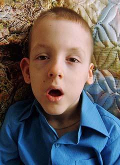 Алеша Антропов, 7 лет, детский церебральный паралич, симптоматическая эпилепсия, требуется курсовое лечение. 180000 руб.