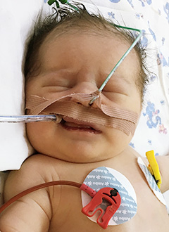 Габриэлла Кузнецова, 2 дня, врожденный порок сердца, спасет операция. 770350 руб.
