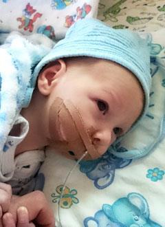 Ваня Ильенко, 1 месяц, синдром Пьера Робена (патология развития костей лица, нёба), спасет операция, требуются дистракционные аппараты. 407418 руб.