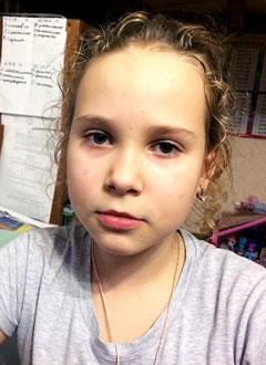Юля Аравина, 9 лет, двусторонняя сенсоневральная тугоухость 2-й степени, требуются слуховые аппараты. 193831 руб.