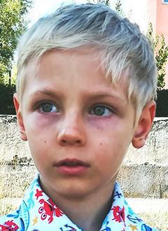 Тимоша Гоптенко, 4 года, задержка психоречевого развития, аутикоподобный синдром, требуется курсовое лечение. 199200 руб.