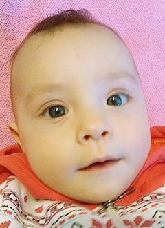 Вика Сенцова, 7 месяцев, множественные врожденные пороки развития рук и ног, требуется операция и модульный протез. 527232 руб.
