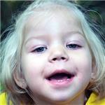 Катя Волохова, врожденный гиперинсулинизм, требуется лекарство, 161936 руб.