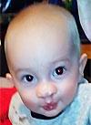 Максим Денисов, полтора года, рубцовая деформация губы и носа, сужение челюстей, требуется ортодонтическое лечение. 20850 руб.
