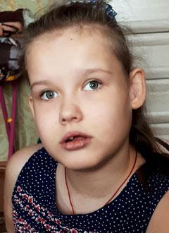 Полина Винокурова, 10 лет, органическое поражение центральной нервной системы, симптоматическая эпилепсия, требуется курсовое лечение. 199200 руб.