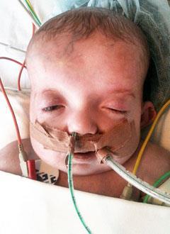 Паша С., 3 месяца, врожденный порок сердца, спасет операция. 471623 руб.