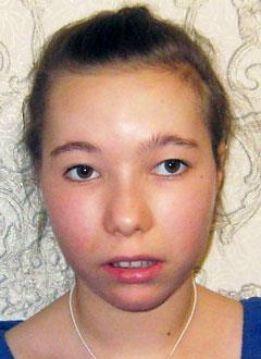 Катя Туркова, 12 лет, эпилепсия, задержка психоречевого развития, требуется лечение. 199430 руб.