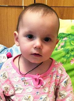 Яна Костылева, полтора года, врожденный порок сердца, спасет операция, требуется протез легочной артерии. 565285 руб.