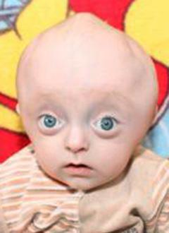 Егор Колошин, 8 месяцев, синдром Пфайффера (деформация черепа и лицевых костей), спасет операция. 1020000 руб.