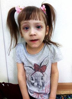 Вика Кислицина, 5 лет, дегенеративное заболевание нервной системы, вызванное нарушением обмена веществ, требуется лечение. 199430 руб.