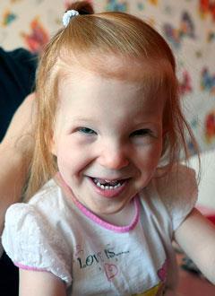 Маша Збродько, 2 года, детский церебральный паралич, требуется лечение. 199430 руб.