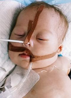 Маша Якубова, 1 месяц, тяжелый врожденный порок сердца, спасет операция. 265502 руб.