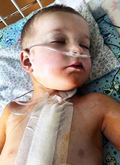 Андрюша Морозов, 4 года, врожденный порок сердца, требуется кислородный концентратор. 235060 руб.