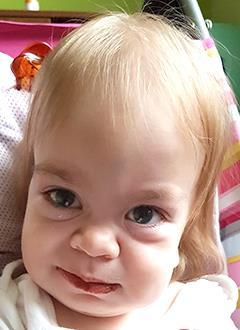 Карина Кудряшова, 2 года, редкое генетическое заболевание – мукополисахаридоз, синдром Гурлер, спасет трансплантация костного мозга и лекарства. 4713120 руб.