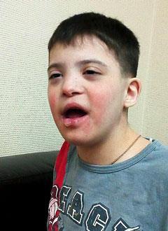 Вова П., 17 лет, синдром Дауна, умственная отсталость, требуются средства для оплаты годового содержания в социальном доме. 516000 руб.