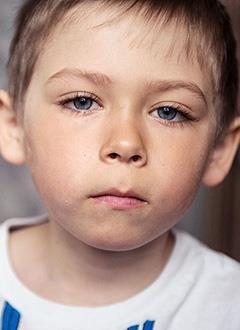 Стас Дерепаскин, 7 лет, врожденный кифосколиоз грудного отдела позвоночника 4-й степени, требуется операция по раздвижке металлоконструкции. 20388 руб.