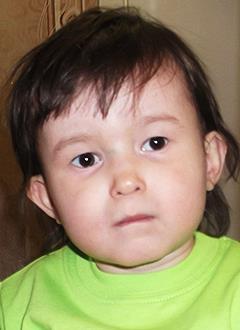 Аня Дудко, 3 года, тяжелый врожденный порок сердца, спасет операция. 556949 руб.