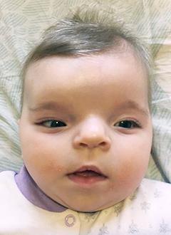 Алиса Стецовская, 7 месяцев, врожденная деформация черепа, спасет операция, требуется компьютерная подготовка и дистракторы. 640000 руб.