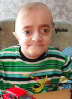 Паша Ставицкий, 12 лет, остеопороз, требуется курсовое лечение. 527310 руб.