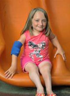 Арина Шнякова, 11 лет, несовершенный остеогенез, требуется операция. 4665500 руб.