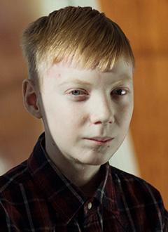Ваня Божедомов, 15 лет, буллезный эпидермолиз, требуется послеоперационное лечение. 155493 руб.