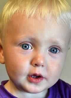 Ярослав Иванов, полтора года, врожденный порок сердца, спасет операция. 379750 руб.