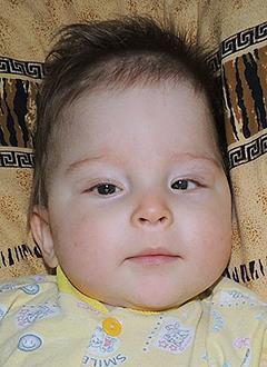 Саша Цапаев, 9 месяцев, гидроцефалия – водянка головного мозга, требуется программируемая шунтирующая система. 169846 руб.