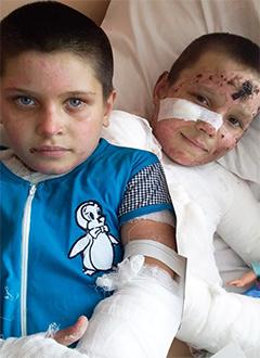 Таня Лысанова и Лера Ковалева, 8 лет, 6 лет, термический ожог 2–3-й степени, требуются медикаменты иперевязочные материалы. 291165 руб.